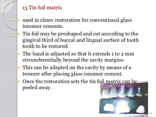 13.Tin foil matrix  used in classv restoration for conventional glass ionomer cements.  Tin foil may be preshaped and cu...