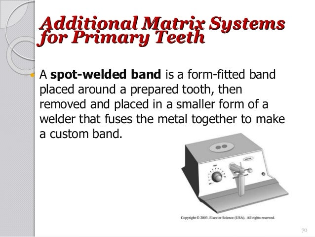 70 Additional Matrix Systems for Primary Teeth  A spot-welded band is a form-fitted band placed around a prepared tooth, ...