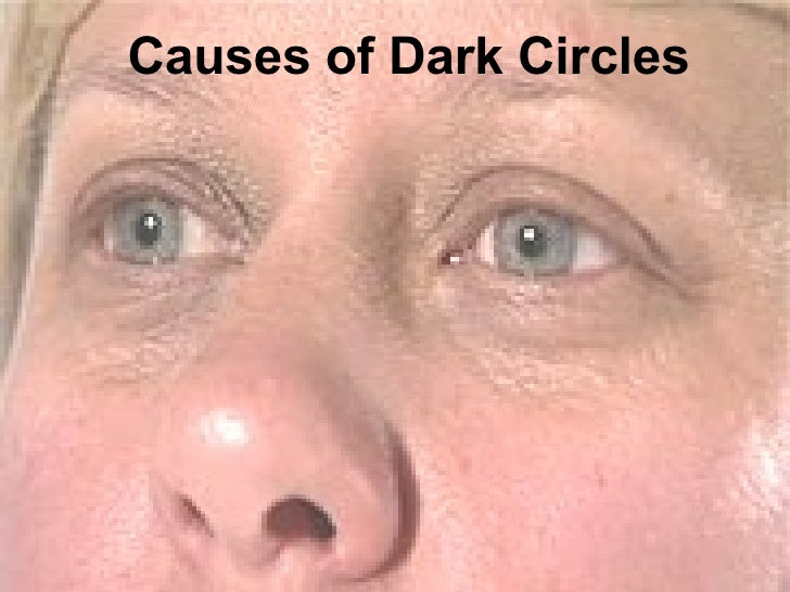 Causes of Dark Circles