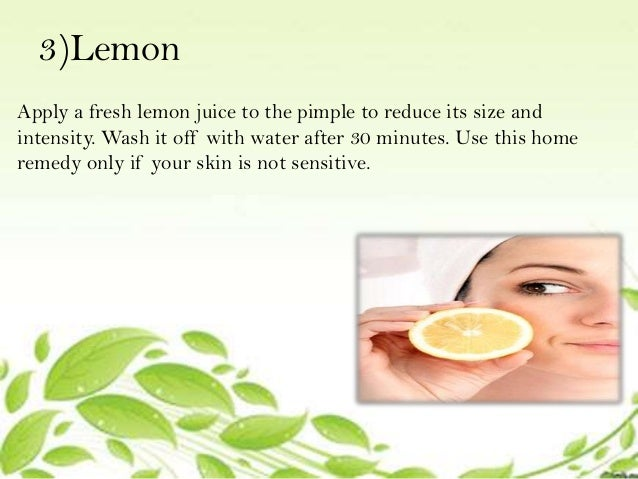 10 home remedies