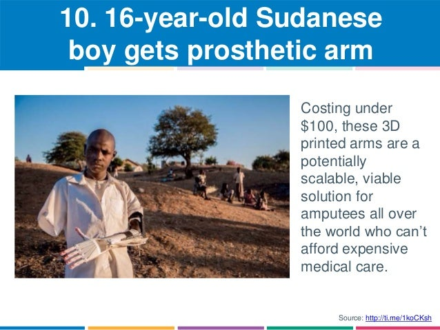 10. 16-year-old Sudanese  boy gets prosthetic arm  Costing under  $100, these 3D  printed arms are a  potentially  scalabl...