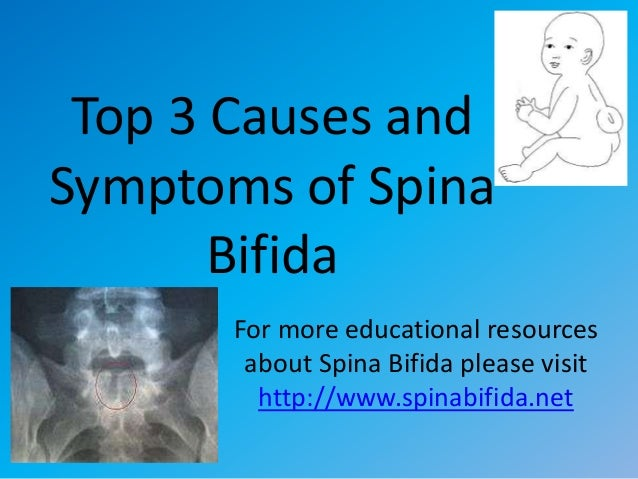 Top 3 Causes andSymptoms of SpinaBifidaFor more educational resourcesabout Spina Bifida please visithttp://www.spinabifida...