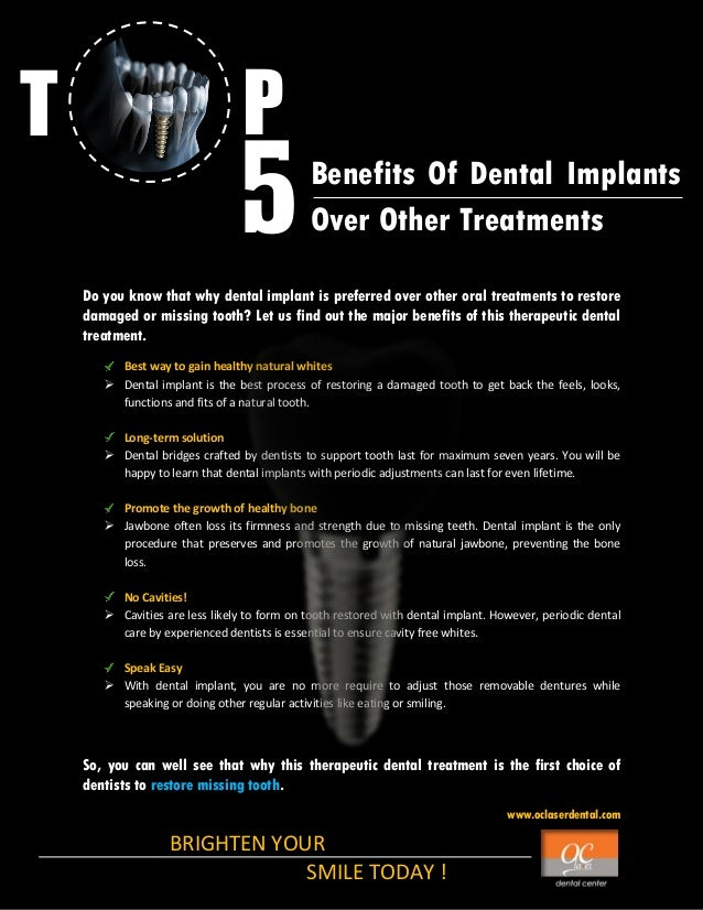 T  P  5  Benefits Of Dental Implants Over Other Treatments  Do you know that why dental implant is preferred over other or...