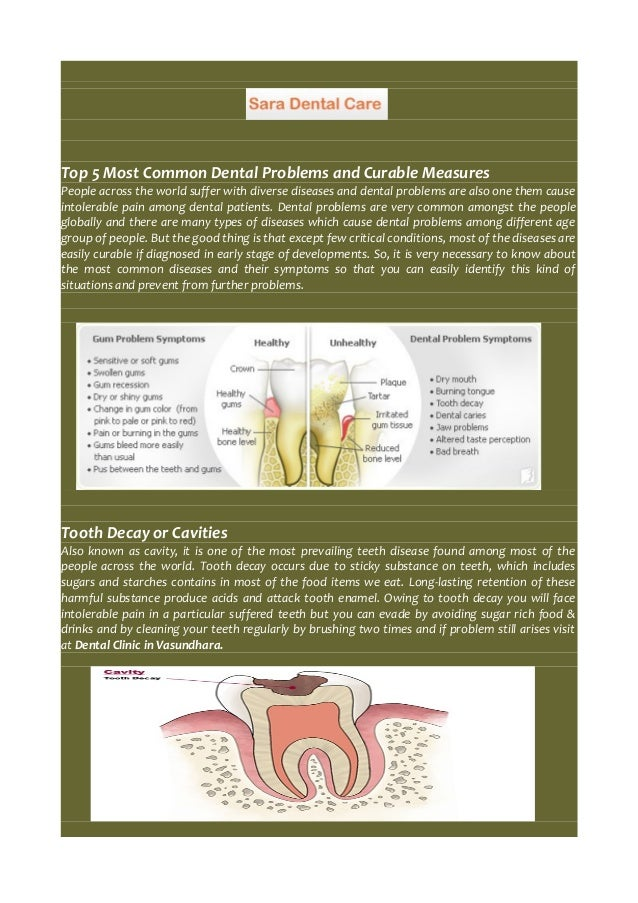 Top 5 Most Common Dental Problems and Curable Measures  People across the world suffer with diverse diseases and dental pr...