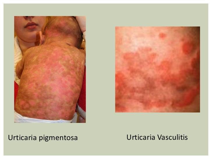 Urticarial Vasculitis In Toddlers Urticarial Erythema Mu...