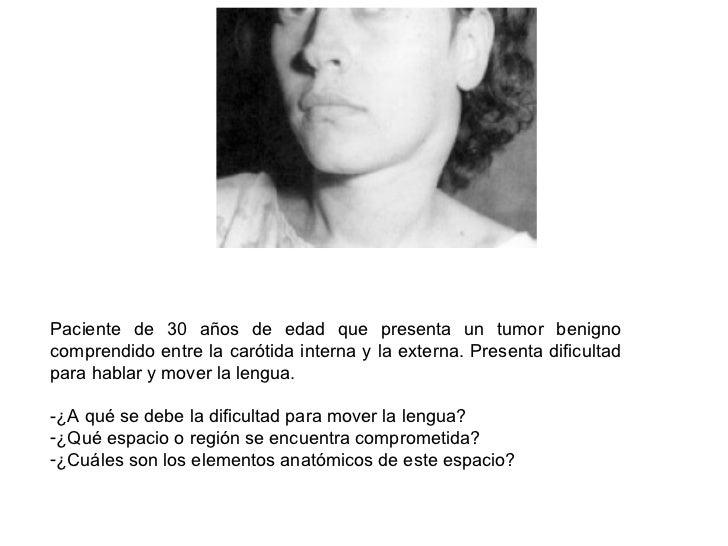 <ul><li>Paciente de 30 años de edad que presenta un tumor benigno comprendido entre la carótida interna y la externa. Pres...