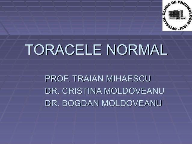 TORACELE NORMALTORACELE NORMAL PROF. TRAIAN MIHAESCUPROF. TRAIAN MIHAESCU DR. CRISTINA MOLDOVEANUDR. CRISTINA MOLDOVEANU D...