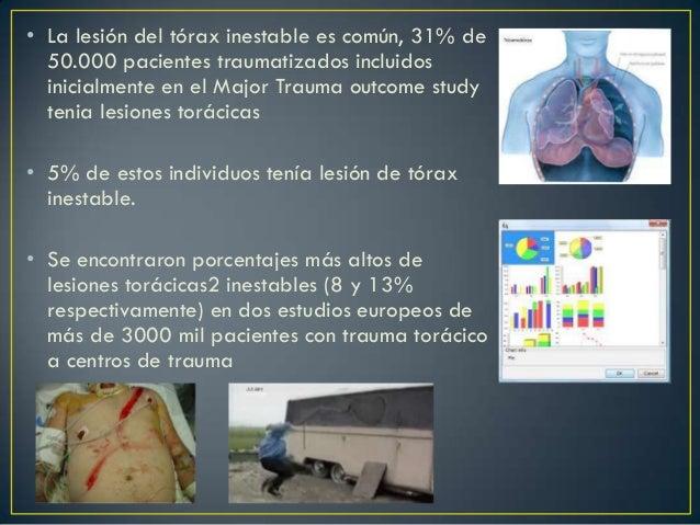 Torax inestable Slide 3
