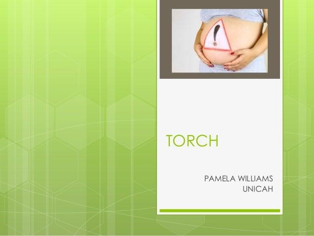 TORCH PAMELA WILLIAMS UNICAH