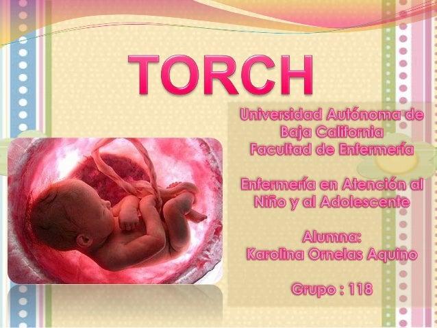 Es una infección materna que afecta al feto en gestación. Este síndrome corresponde a un conjunto de signos y síntomas que...