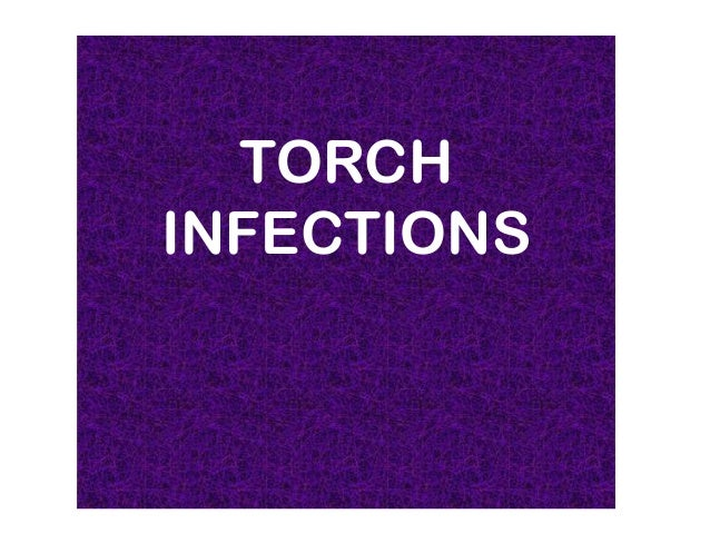 TORCH INFECTIONS   TORCH BYINFECTIONS  NKIRU VICTORIA  CHUKWUKAEME       GROUP 42    6TH COURSE