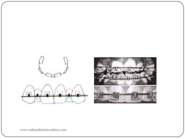 torque   certified fixed orthodontic courses by indian dental acade u2026