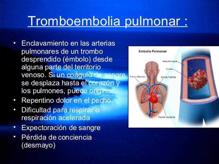 Tromboembolia pulmonar :   <ul><li>Enclavamiento en las arterias pulmonares de un trombo desprendido (émbolo) desde alguna...
