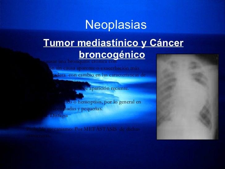 Neoplasias   Tumor mediastínico y Cáncer broncogénico   *Puede causar una bronquitis crónica con exacerbación sin causa ap...