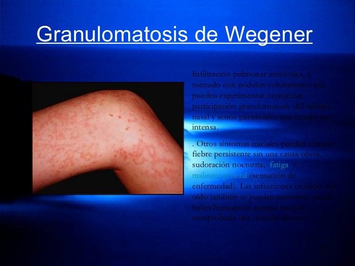Granulomatosis de Wegener   Infiltración pulmonar asimétrica, a menudo con nódulos voluminosos que pueden experimentar cav...