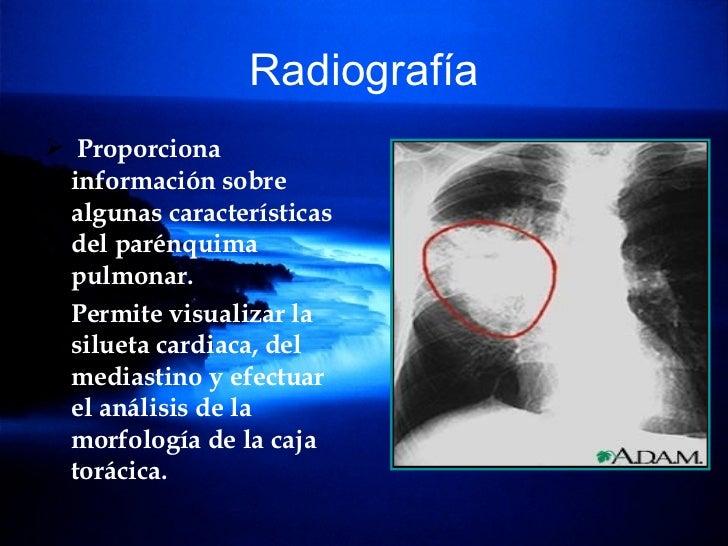 Radiografía <ul><li>Proporciona información sobre algunas características del parénquima pulmonar. </li></ul><ul><li>Permi...