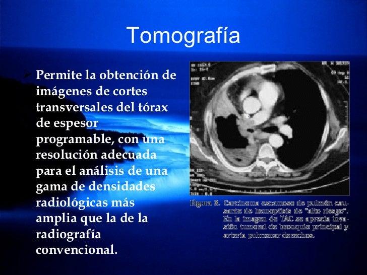 Tomografía <ul><li>Permite la obtención de imágenes de cortes transversales del tórax de espesor programable, con una reso...