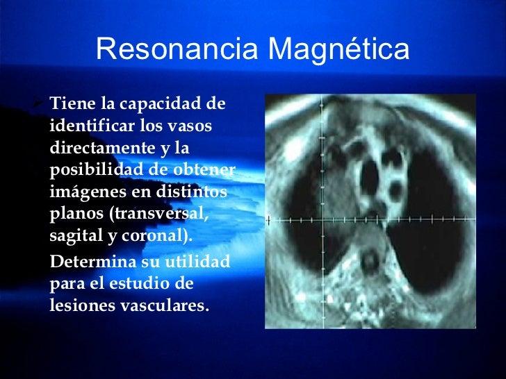 Resonancia Magnética <ul><li>Tiene la capacidad de identificar los vasos directamente y la posibilidad de obtener imágenes...