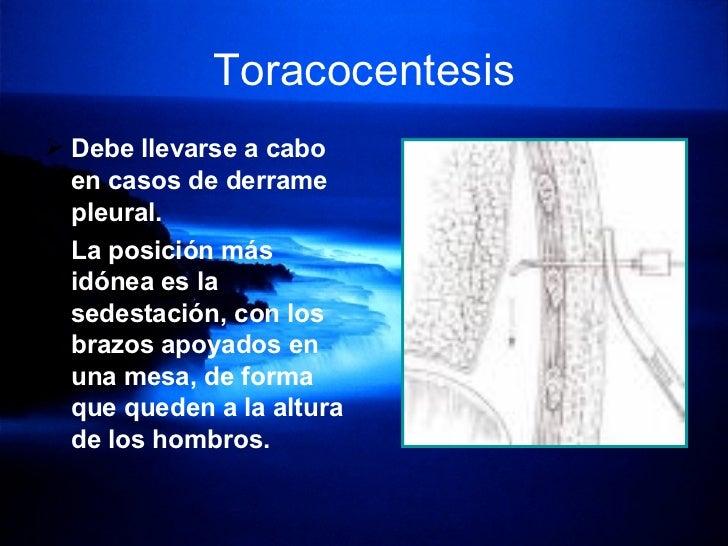 Toracocentesis <ul><li>Debe llevarse a cabo en casos de derrame pleural.   </li></ul><ul><li>La posición más idónea es la ...