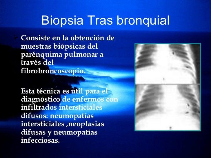Biopsia Tras bronquial <ul><li>Consiste en la obtención de muestras biópsicas del parénquima pulmonar a través del fibrobr...