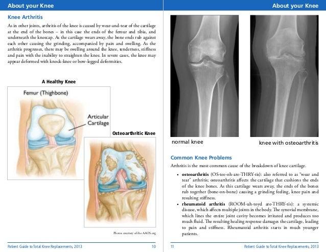Total knee-replacement-0916-noninteractive