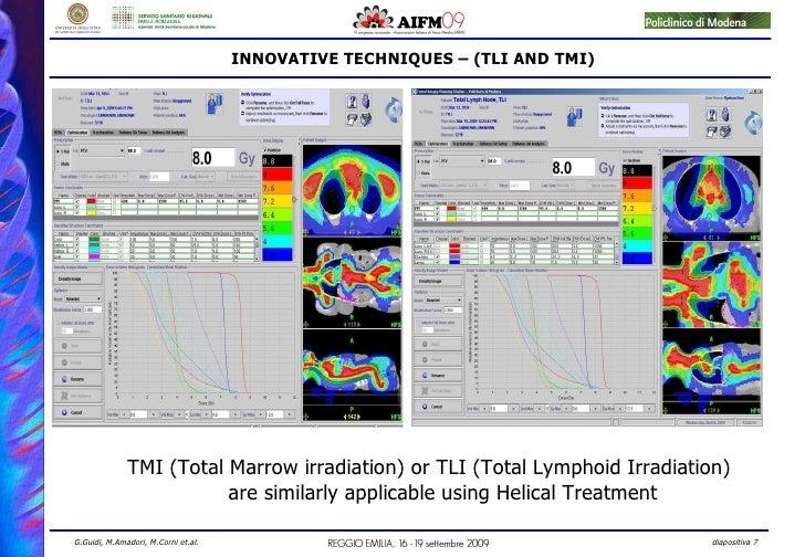 INNOVATIVE TECHNIQUES – (TLI AND TMI) <ul><li>TMI (Total Marrow irradiation) or TLI (Total Lymphoid Irradiation) are simil...