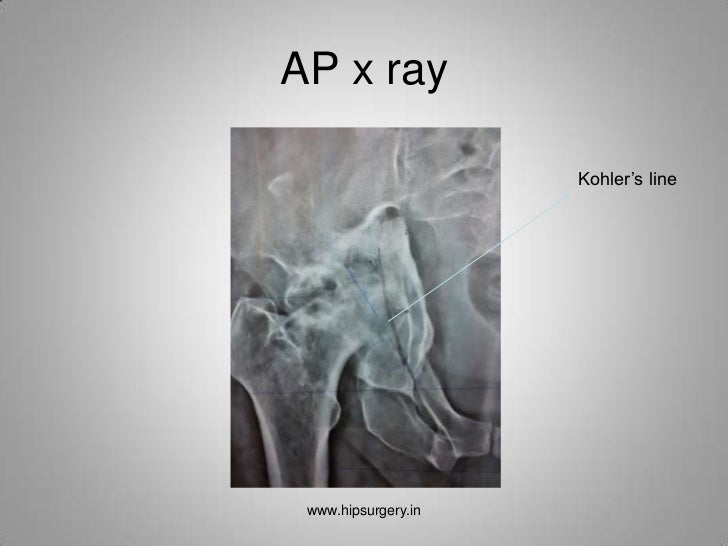 Total Hip Replacement In Protrusio Acetabuli