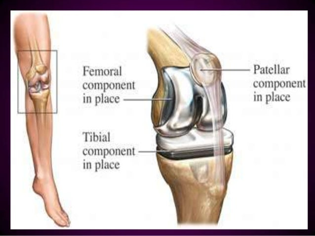 total knee replacement post op pain management Pain is a major concern for patients who are about to have total knee surgerypost-operative knee replacement patients want to know what their life will be like after their surgery, how much discomfort they will have, and how many narcotics or other medications they will have to take.