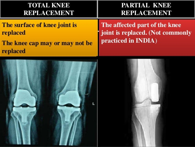 steroids for knee joint pain