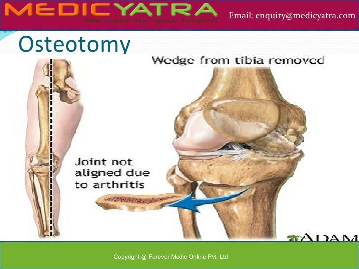 Total knee replacement (tkr) Surgery