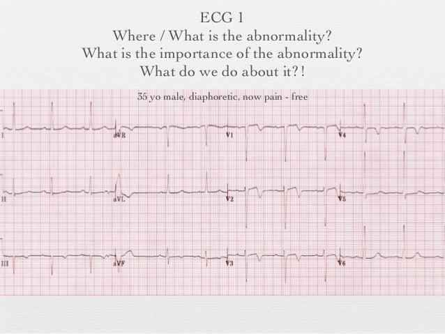 The importance of a electrocardiogram