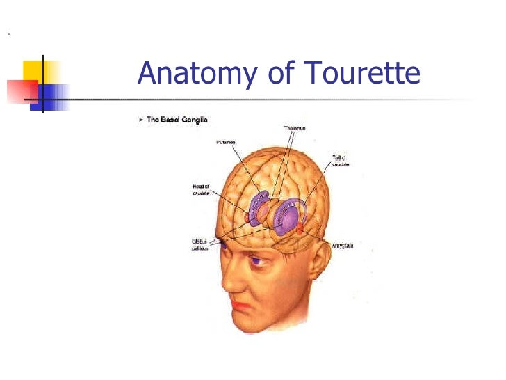 the causes of the tourette syndrome Tourette syndrome genetic aspects (causes) genetic studies have shown that in most cases tourette syndrome is a.