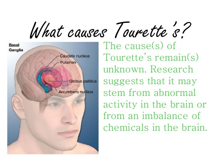 the characteristics of the tourette syndrome a neurological disorder Tourette syndrome (ts) is a neurological movement disorder that is inherited it  affects  about 1 million americans may have very mild symptoms of ts.
