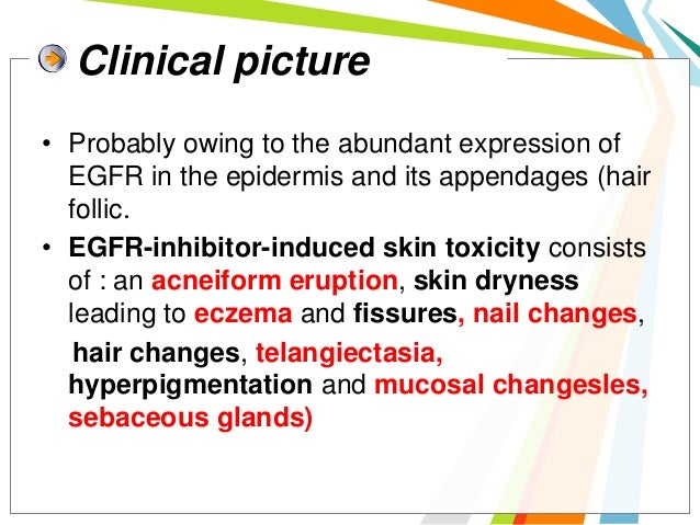 EGFR-inhibitor-induced rash is acneiform should  clearly be distinguished from acne vulgaris: indeed,  comedones (blackhea...