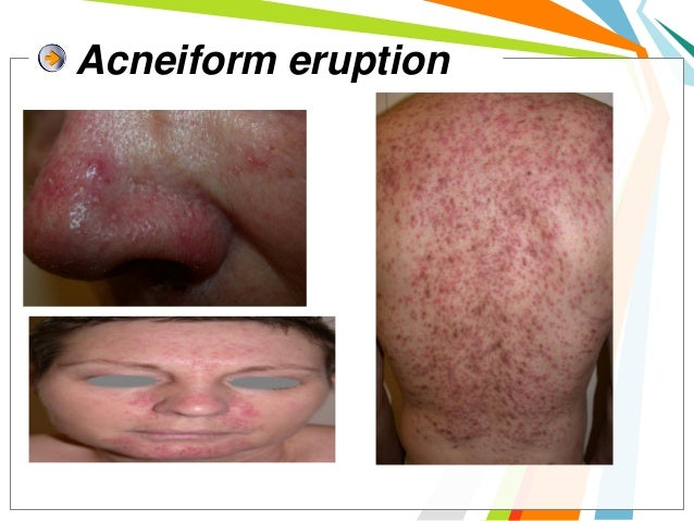 Xerosis, eczema and fissures