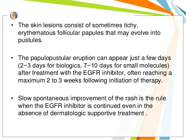 Nail changes• In 10−15% of patients, do  not start earlier than 4−8  weeks after the initiation  of the EGFR inhibitor• Pa...