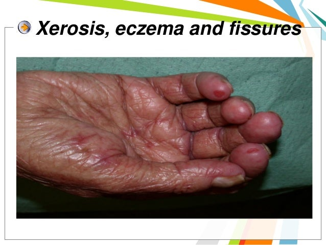 Treatment ofEGFR-inhibitor skin toxicity