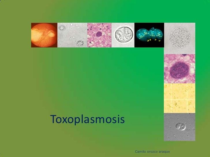 Toxoplasmosis                  Camilo orozco araque