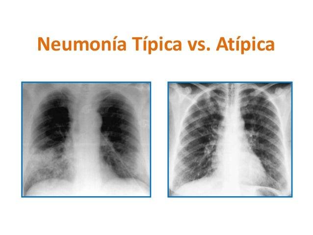 Neumonía Típica vs. Atípica