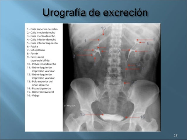 Trabajo anatomia ap urinario