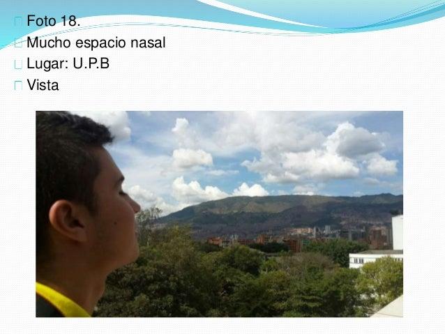 Foto 18. Mucho espacio nasal Lugar: U.P.B Vista