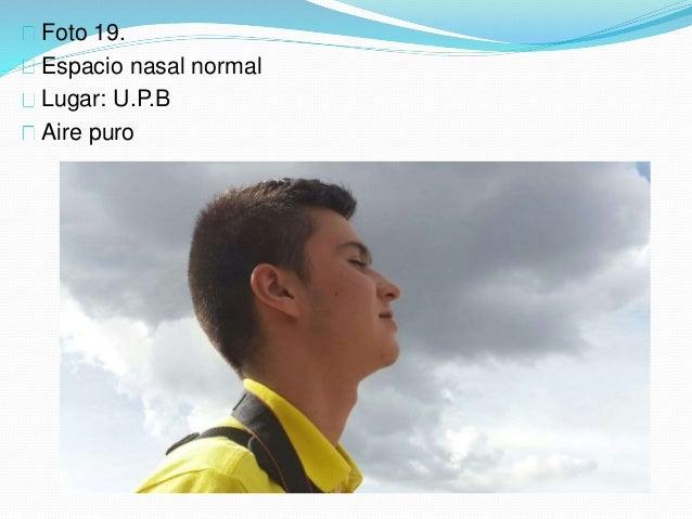 Foto 19. Espacio nasal normal Lugar: U.P.B Aire puro