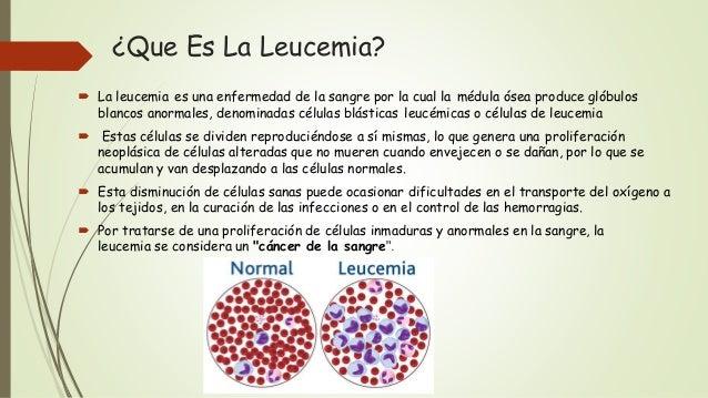 ¿Que Es La Leucemia?  La leucemia es una enfermedad de la sangre por la cual la médula ósea produce glóbulos blancos anor...