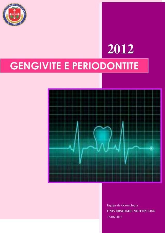2012GENGIVITE E PERIODONTITE                  Equipe de Odontologia                  UNIVERSIDADE NILTON LINS             ...