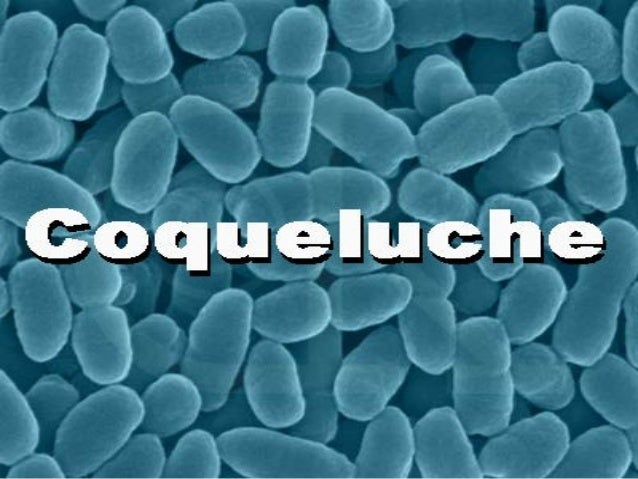 HISTÓRICO A palavra coqueluche foi importada do francêscoqueluche O nomecoqueluque,surgiu primeiro como sinônimo de cap...