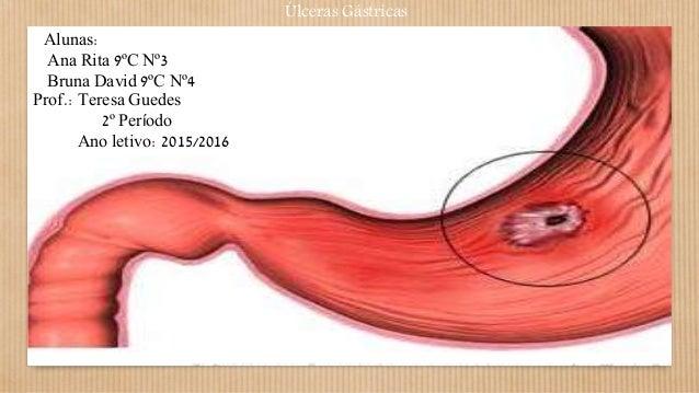 Úlceras Gástricas Alunas: Ana Rita 9ºC Nº3 Bruna David 9ºC Nº4 Prof.: Teresa Guedes 2º Período Ano letivo: 2015/2016