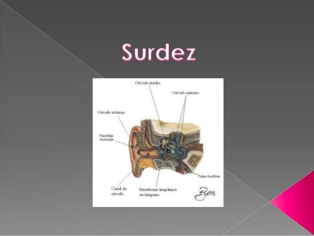    Surdez é o nome usado para indicar a perda de    audição ou diminuição na capacidade de    escutar os sons, qualquer p...