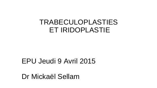 TRABECULOPLASTIES ET IRIDOPLASTIE EPU Jeudi 9 Avril 2015 Dr Mickaël Sellam