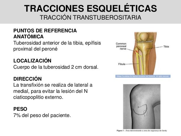 TRACCIONES ESQUELÉTICAS TRACCIÓN TRANSTUBEROSITARIA PUNTOS DE REFERENCIA ANATÓMICA Tuberosidad anterior de la tibia, epífi...