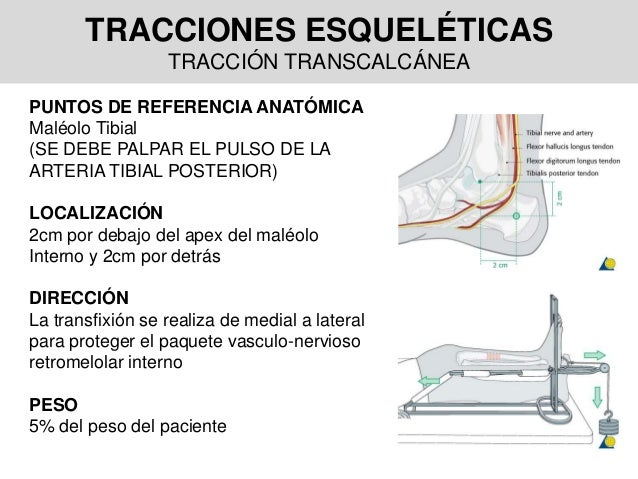 TRACCIONES ESQUELÉTICAS TRACCIÓN TRANSCALCÁNEA PUNTOS DE REFERENCIA ANATÓMICA Maléolo Tibial (SE DEBE PALPAR EL PULSO DE L...